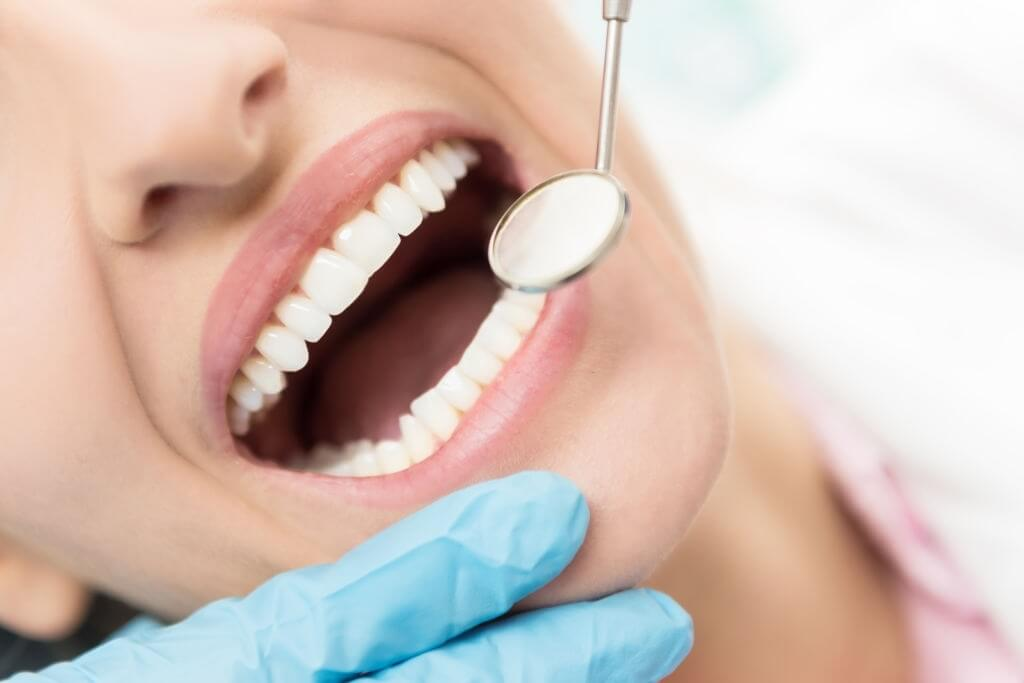 Can-You-Treat-Tooth-Decay-At-Home